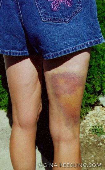 ©my bruise
